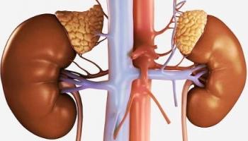 Crisis Suprarrenal o Adrenal